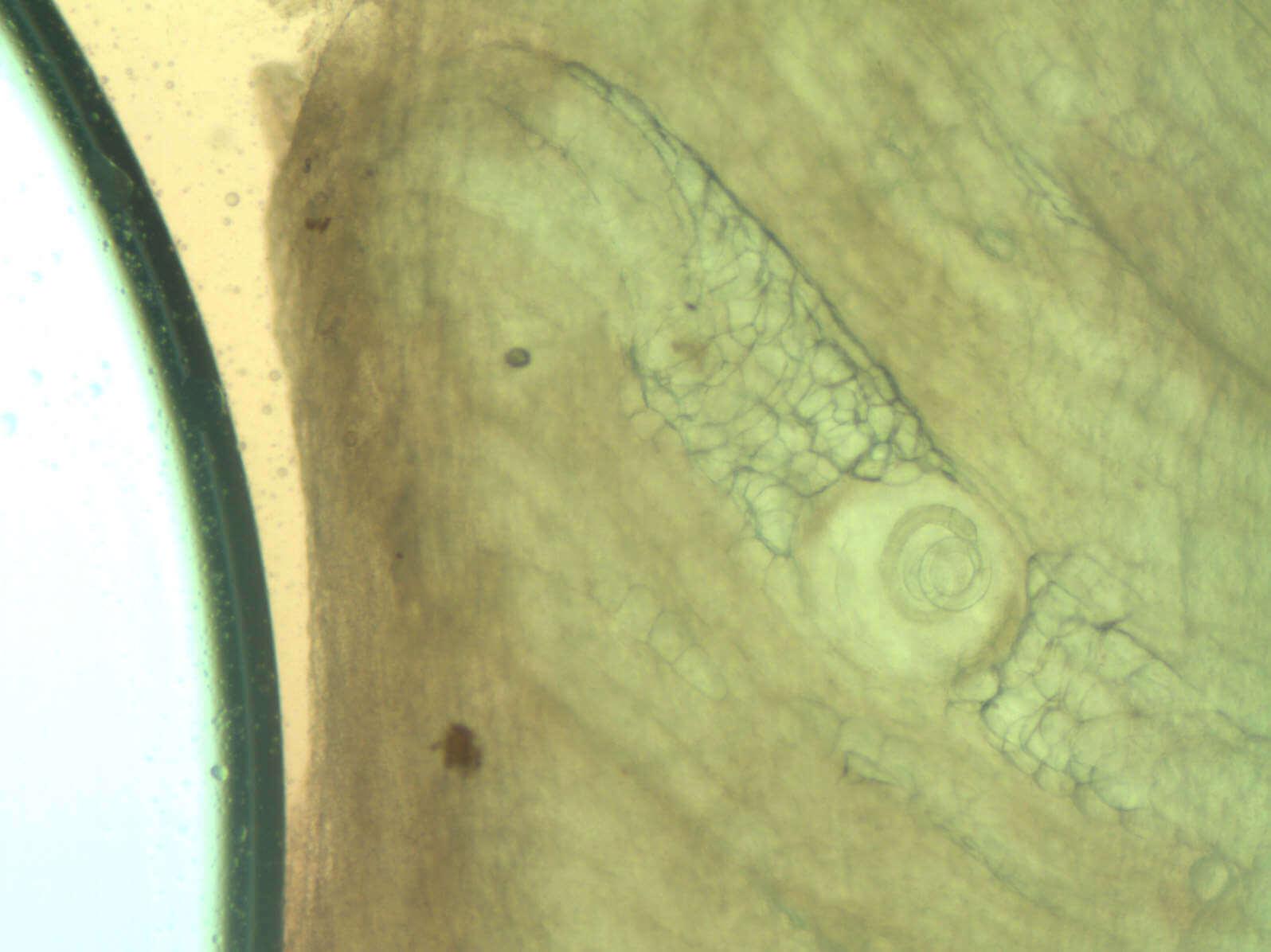 Трихинелоза